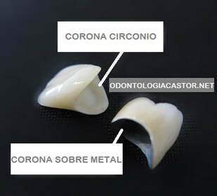 comparacion corona dental circonio cinco saltos